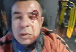 Motorista de ônibus é agredido após pedir para passageiro colocar máscara – VEJA VÍDEO