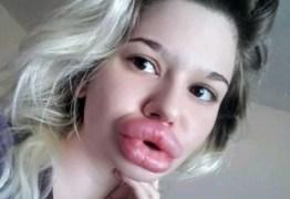 Barbie Humana toma 21º injeção para ter maiores lábios do mundo
