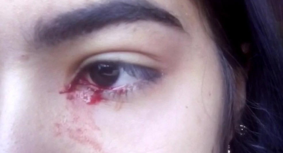 adolescente sangue - Adolescente 'chora sangue' e intriga família no interior