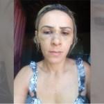 """agredida coremas - """"Ele sempre me bate"""", desabafa empresária espancada pelo ex na frente dos filhos em Coremas - VEJA VÍDEOS"""