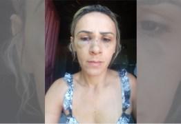 """""""Ele sempre me bate"""", desabafa empresária espancada pelo ex na frente dos filhos em Coremas – VEJA VÍDEOS"""