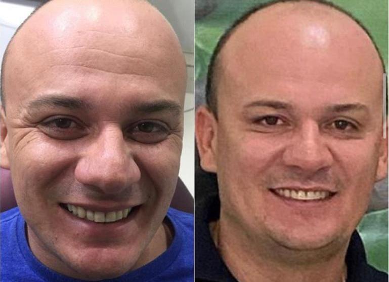 cabo - Botox e bichectomia: deputado paraibano se submete a procedimento estético
