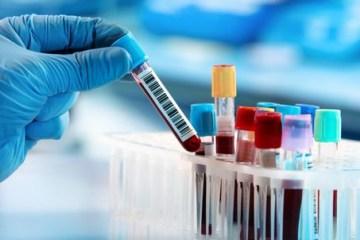 exame de sangue 77930 article - Brasil tem 2ª com menos mortes por covid-19 em quase 5 meses