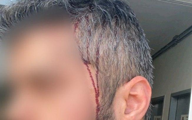 8qmvkmf5ds8x81ed779kpujcu - Sobrinho de Bolsonaro é acusado de espancar e morder atual namorado da ex