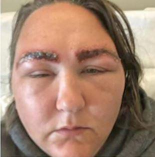 """Capturar77 - Mulher quase morre após tingir as sobrancelhas: """"Grave reação alérgica"""""""