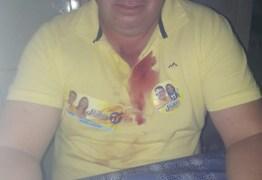 SOBROU GARRAFADA: eleitores do DEM e PP de Pedra Lavrada se envolvem em briga e ficam feridos – VEJA VÍDEO