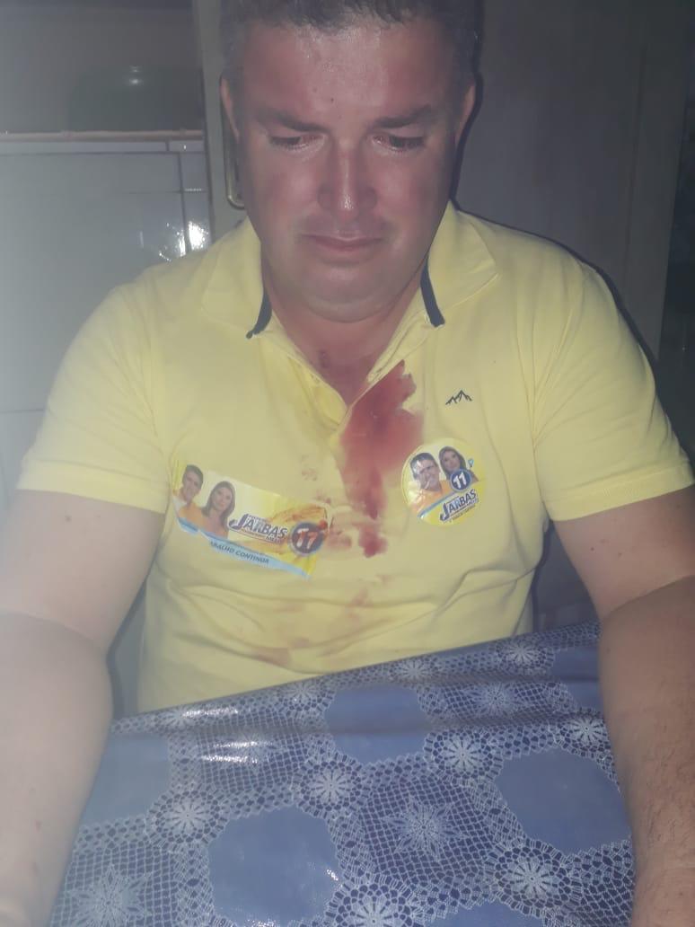 WhatsApp Image 2020 10 04 at 10.50.23 - SOBROU GARRAFADA: eleitores do DEM e PP de Pedra Lavrada se envolvem em briga e ficam feridos - VEJA VÍDEO