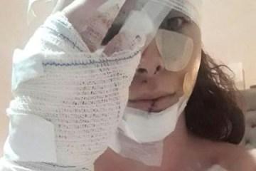 rebeka curtts levou mais de 30 facadas principalmente na cabeca e no rosto e teve seu carro e celular levados por dois homens 1603116466040 v2 450x600 e1603133207175 - Garota de programa é ferida com mais de 30 facadas por cliente antigo