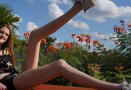 Jovem bate recorde de pernas mais longas do mundo: 134 cm