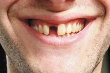 MAIS UM SINTOMA?! Covid-19 pode causar queda repentina dos dentes