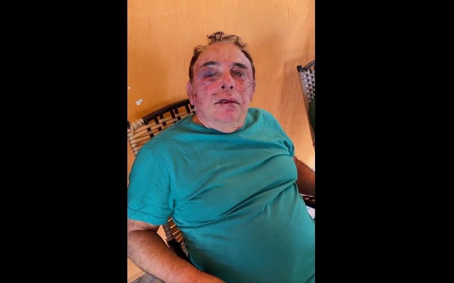 prefeito agredido - IMAGEM FORTE: Candidato a prefeito na Paraíba é brutalmente agredido durante assalto; família é feita refém