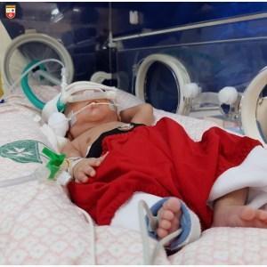 WhatsApp Image 2020 12 21 at 21.40.53 1 300x300 - Bebês de UTI neonatal fazem ensaio fotográfico para o Natal