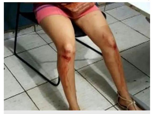 1610590534 - Mulher é espancada por cinco pessoas ao ser apontada como 'bruxa'
