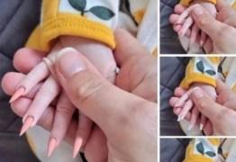 Mãe coloca unhas postiças em recém-nascida e causa polêmica nas redes