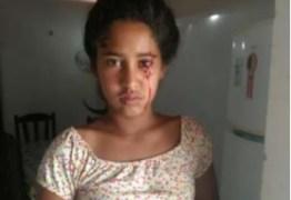 ASSUSTADOR: Aos 12 anos, menina do Piauí busca diagnóstico após 'chorar' sangue