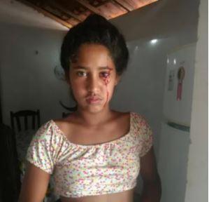 Capturar 12 - ASSUSTADOR: Aos 12 anos, menina do Piauí busca diagnóstico após 'chorar' sangue