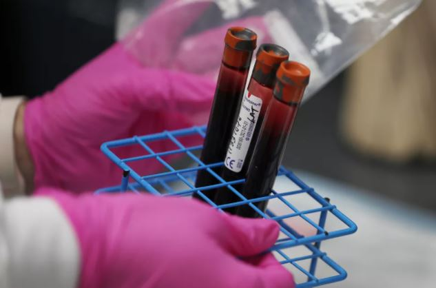 coo - Elo entre tipo sanguíneo e a incidência de Covid-19, é descartado em novo estudo