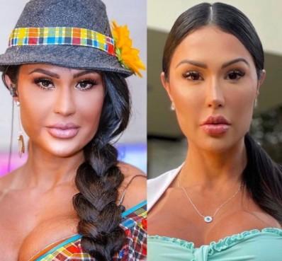 Gracyanne Barbosa - Gracyanne Barbosa faz procedimento para afinar o rosto e resultado impressiona