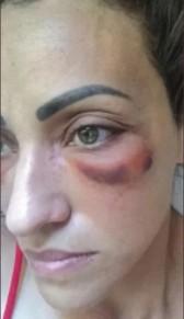 paciente - IMAGENS CHOCANTES! Dentista é acusada de deformar o rosto de pacientes em procedimentos estéticos