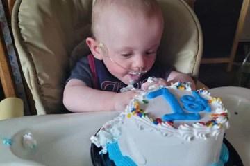 RICHARD - Bebê mais prematuro do mundo vence todas as probabilidades e celebra o primeiro aniversário