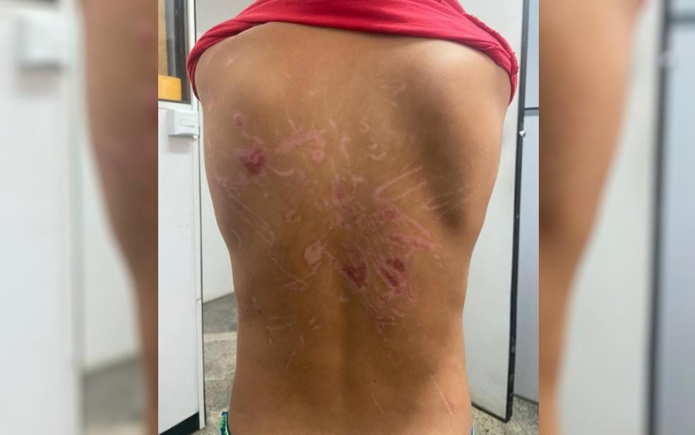 agressao 1 - IMAGENS FORTES: Pai confessa que torturava filho com choques e sessões de afogamento quando ficava bêbado