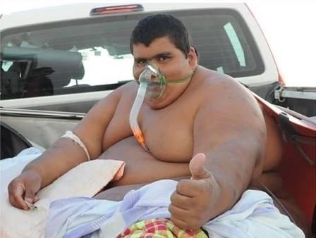 df9a47f3a9278efae617edf990e24b4a - VÍTIMA DA COVID: Morre em Patos aos 34 anos e com quase 300kg o 'superobeso' Carlinhos