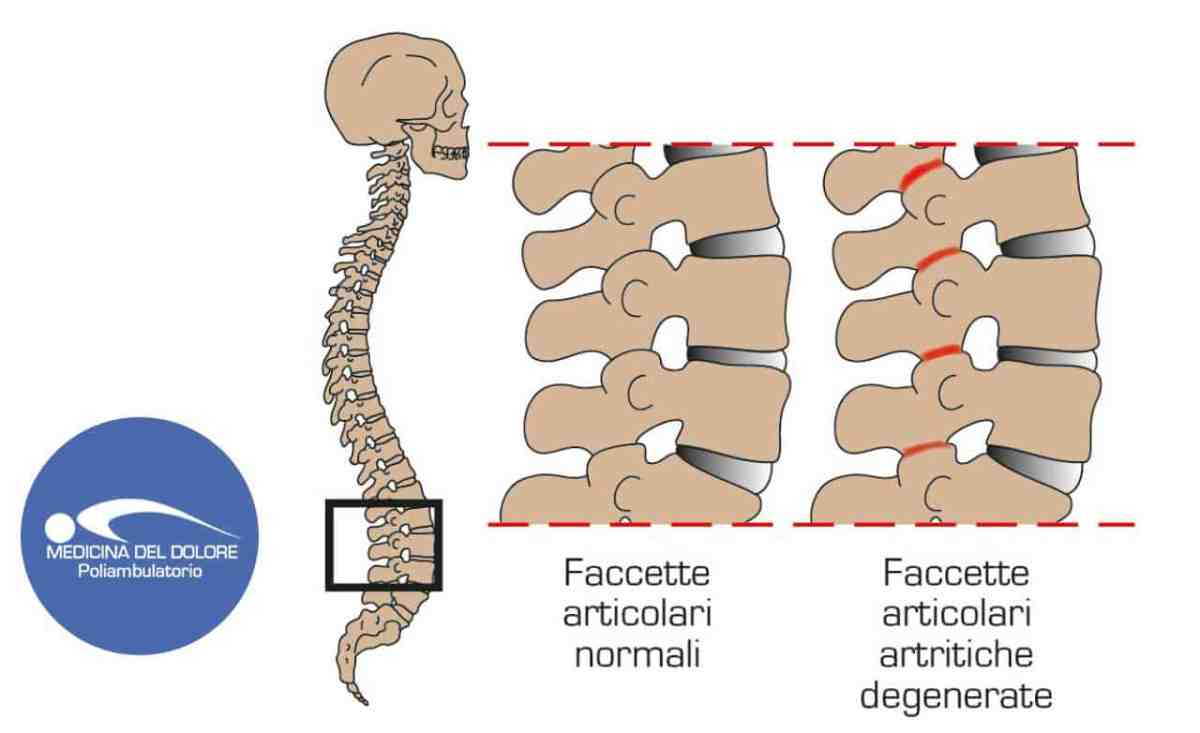 Sindrome delle faccette articolari