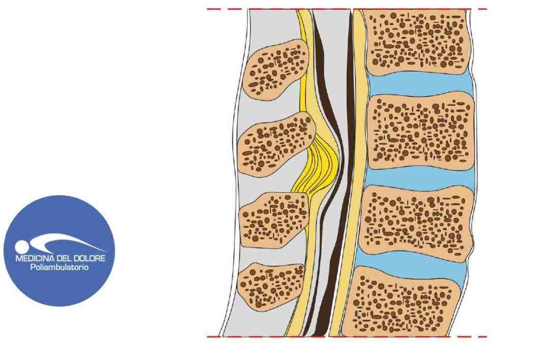 Stenosi del canale vertebrale