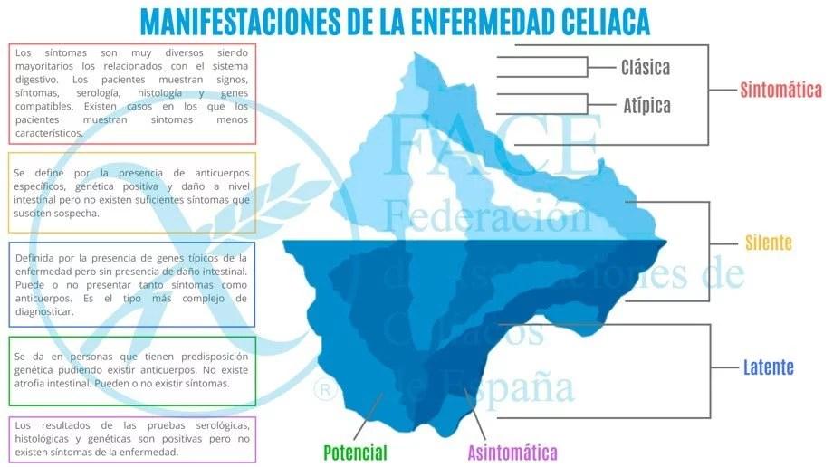 La Enfermedad Celiaca es una patología multisistémica con base autoinmune provocada por el gluten y prolaminas relacionadas.