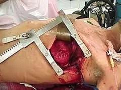 frontroom-thoractomy