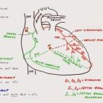 Hunting the Culprit 2: Coronary Artery Anatomy