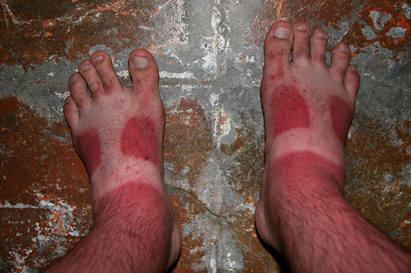 sunburned-feet