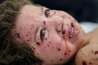 Un bambino ferito in seguito a un'esplosione.