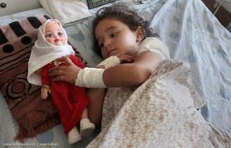 Shayma al Masri (quattro anni) gioca con la sua bambola nel letto d'ospedale.