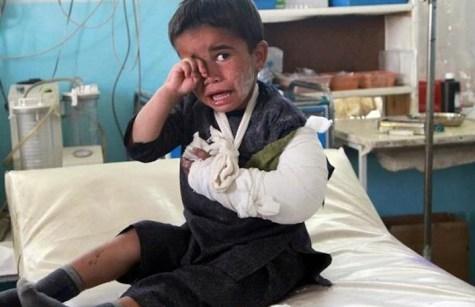 Sono migliaia i bambini morti o feriti a causa della guerra. Molti di loro vivranno il resto della loro vita senza almeno un arto.