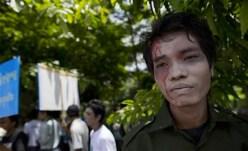 Non c'è solo la guerra. La dittatura arresta e tortura anche gli oppositori al regime.