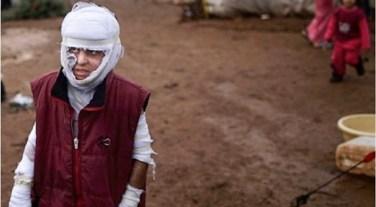 Un bambino sopravvissuto aun attentato.