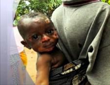 Un bambino sfregiato dalle esalazioni provenienti da fusti i rifiuti tossici.