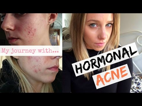 Hormonal Acne + The Pill: Curing My Hormonal Acne Naturally   Poppinzits.com