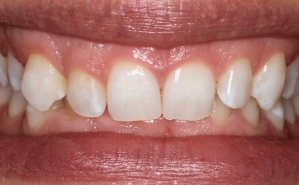 Elleven-Dental-Enlighten