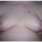 What is Gynecomastia?