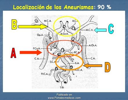 manejo_anestesico_cirugia_aneurisma/localizacion_aneurismas_cerebrales