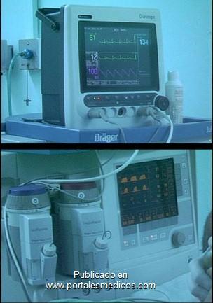 manejo_anestesico_cirugia_aneurisma/monitorizacion_anestesica