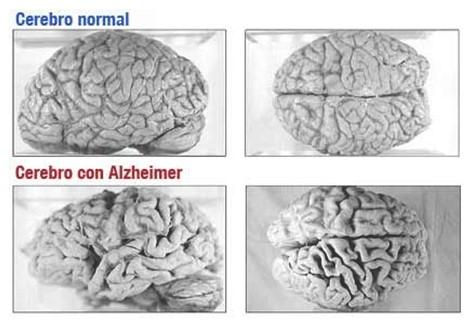 Mi cerebro desde distintos ángulos