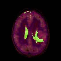 astrocitoma_areas_segmentadas2