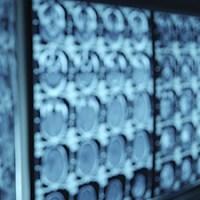Quando Usar Contraste Radiológico em Exame de Imagem? Qual o Mais Indicado?