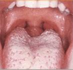 Lígua Saburrosa