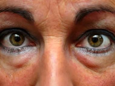 Saiba: Como Tratar e Prevenir as Olheiras