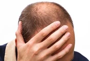 Pesquisadores anunciam a cura da calvície