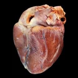 Doença rara, câncer no coração não costuma apresentar sintomas